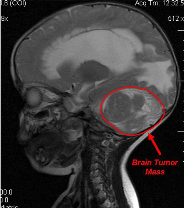 3-17-07 Pre-Op MRI -  Sagittal Section Plane